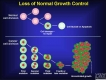 Uncontrolled cancer cell growth
