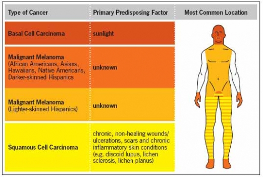 Causes of skin cancer