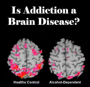 addictions a disease of the brain Addiction as a 'brain disease' - the brain disease model of addiction shows that changes take place in the brain when someone becomes hooked learn about the brain.