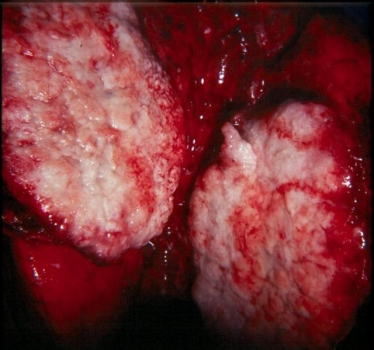 Close up look at lung cancer