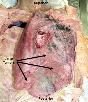 Lung cancer tumors