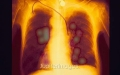 X-rays of lung cancer tumors