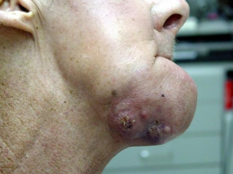 Oral cancer--chin