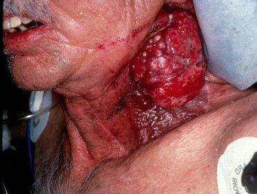 What Does Cancer Look Like On the Neck