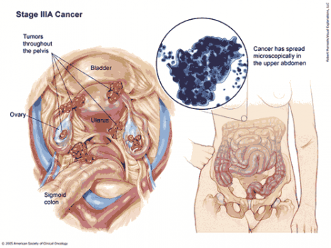 New method shrinks metastatic ovarian cancer and reduces chemotherapy dose
