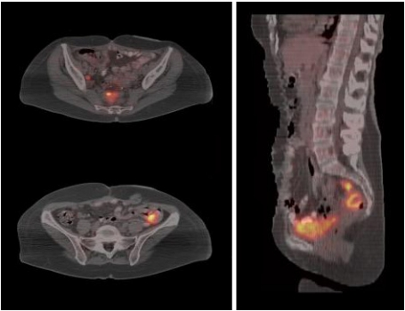 Ovarian cancer x-rays