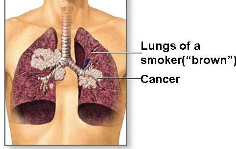 Smokers get lung cancer