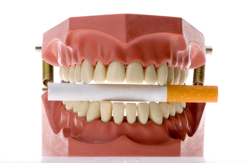Smoking, drinking cause of oral cancer | ENCOGNITIVE COM