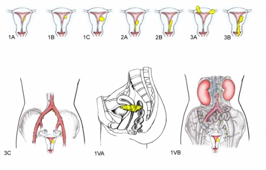 Stages of uterine cancer