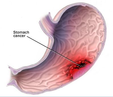 stomach cancer diagram | encognitive, Human body
