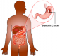 Stomach cancer tumour