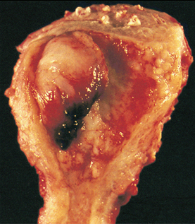Uterine cancer tumor