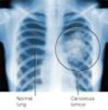 ray of lung cancer tumor