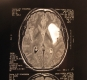 X-ray of brain cancer