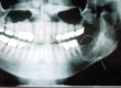 Oral cancer x-ray